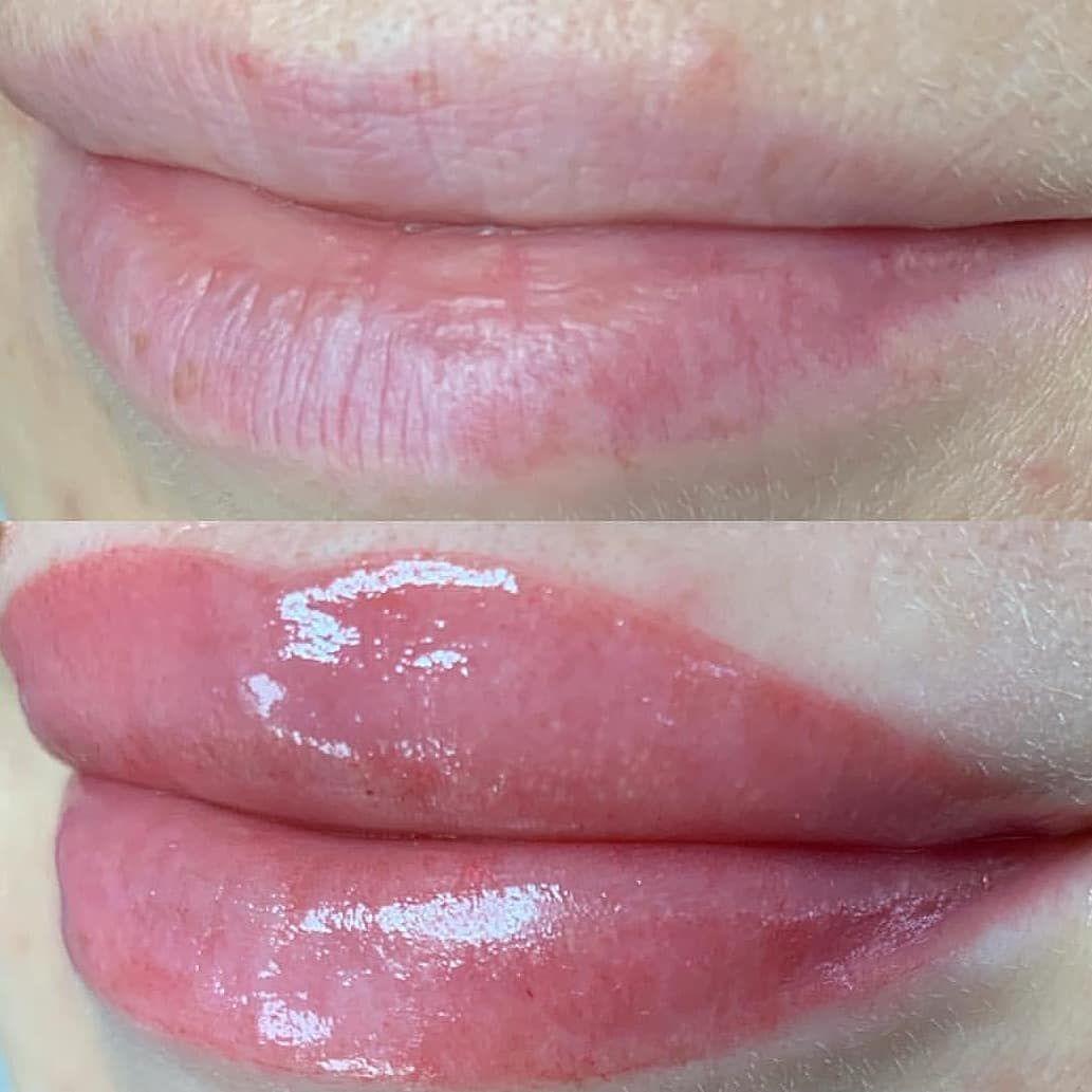 Акварельные губы в Днепре До и После